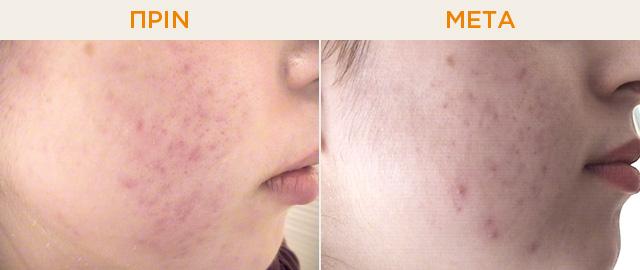 Ουλές δέρματος και αντιμετώπιση - ΠΡΙΝ-ΜΕΤΑ από 4 συνεδρίες