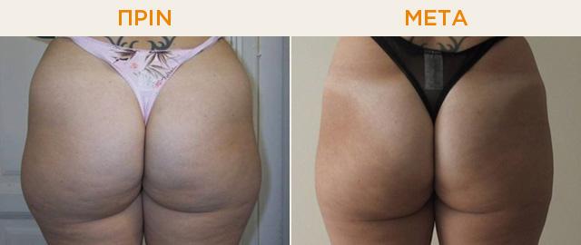 Πριν και μετά από μεσοθεραπεία για τοπικό πάχος - AQUALYX