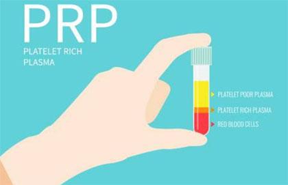 Αυτόλογη μεσοθεραπεία (PRP) - νέες εφαρμογές με αυτόλογο εμφύτευμα (filler) από το ίδιο μας το αίμα